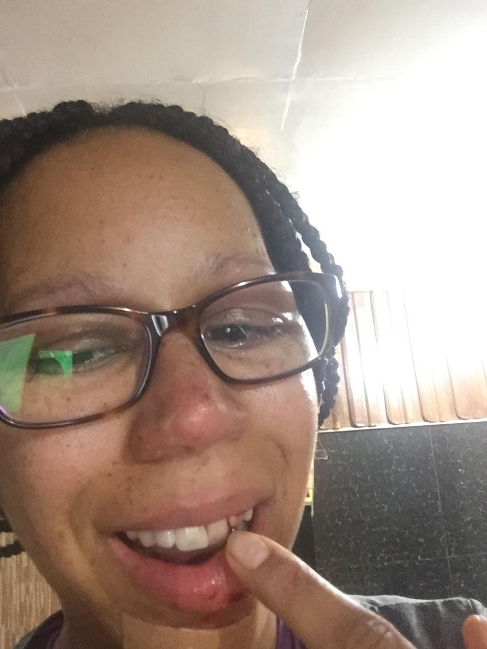 Kieferbruch und Zahnbruch